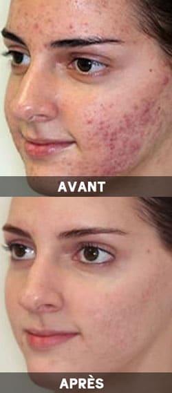 Diane 35 un traitement efficace contre l'acné