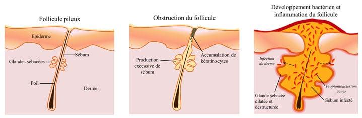 Schéma de la formation des boutons d'acné