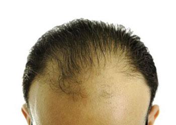 Photo d'une calvitie avancée, homme presque chauve