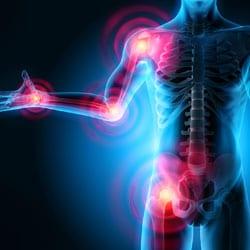 L'arthrose est une des conséquences de l'obésité