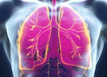 Le tabac est responsable de 90% des cancers du poumon