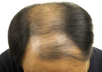 Un comprimé de finasteride par jour pour une repousse des cheveux efficace