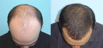 La greffe de cheveux, la solution ultime