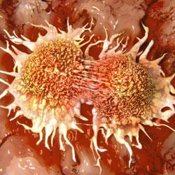 L'obésité favorise l'apparition de certains cancers