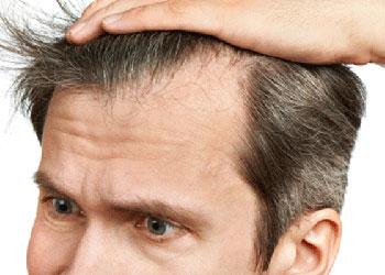 Repousse des cheveux grâce à Propecia