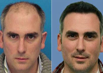 Les stratégies efficaces pour lutter contre la chute des cheveux