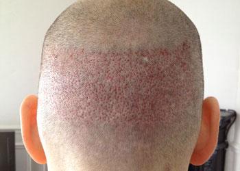 La zone donneuse pour une greffe de cheveux