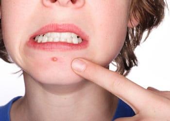 un bouton d'acné chez un adolescent