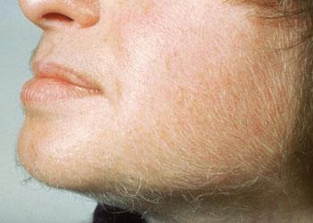 Photo d'une femme atteinte par l'hirsutisme
