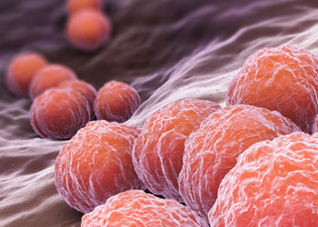 La vaginose bactérienne se soigne avec du flagyl
