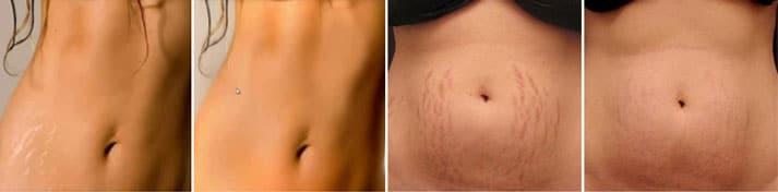 Résultats après utilisation de la crème Skinception