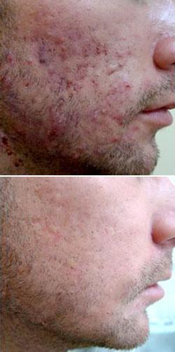 Acheter Roaccuntane gel contre l'acné: Prix, avis, conseils