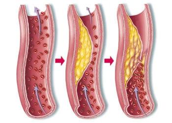 Xenical fait baisser le taux de cholestérol dans le sang