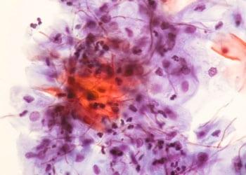 Contre la vaginose bactérienne: Flagyl