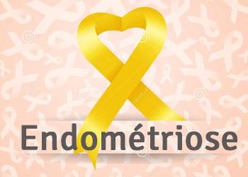 L'endométriose touche de nombreuses femmes